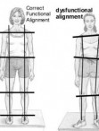 How Does Posture Alignment Therapy Work